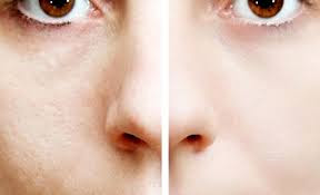 Cara Mudah Mengecilkan Pori - Pori Wajah Secara Alami dan Cepat