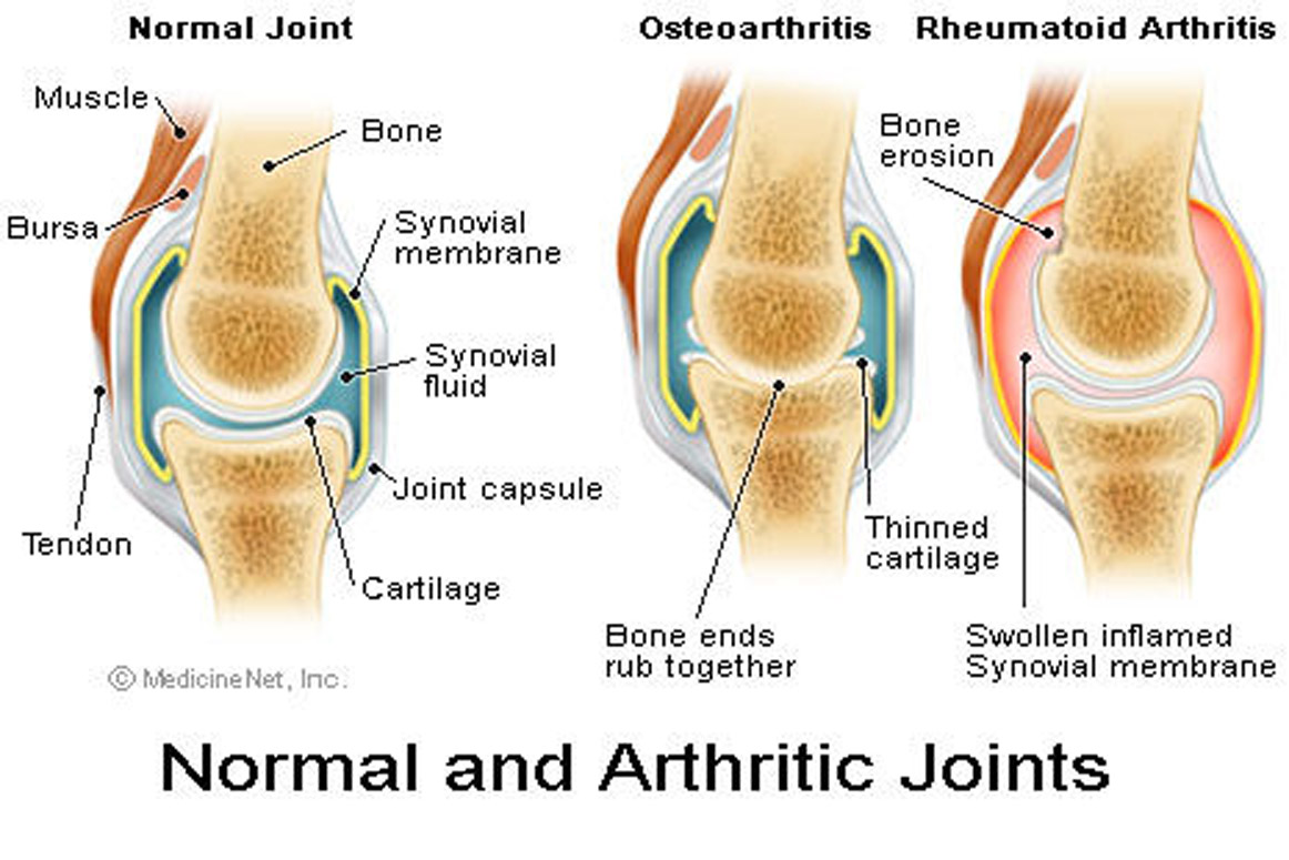 Chronic Pain & Arthritis
