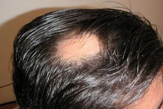 cara mengatasi penyebab dan mengobati penyakit kulit