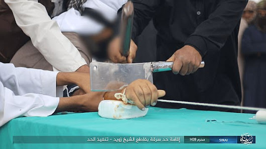 Barbaric Justice.Thief Has His Hand Hacked Off With A Cleaver For Stealing