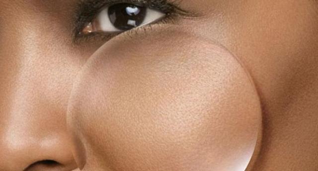 Benarkan Pori-pori yang Membesar Penyebab Jerawat, Bisakah Dikecilkan?