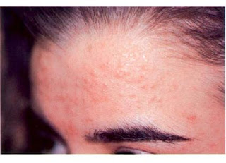 flat wart woman forehead