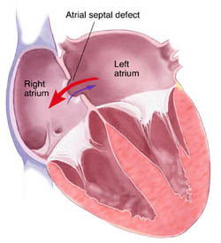 Signs, Causes, Diagnosis and Treatments for Atrial Septal Defects