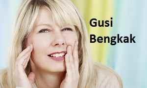 Obat Gusi Bengkak dan Penyebabnya