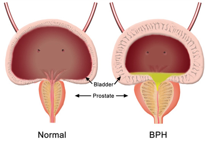 Пол пола в лечении простатита