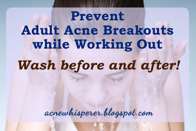 Wash your face before and after working out to prevent Adult Acne breakouts