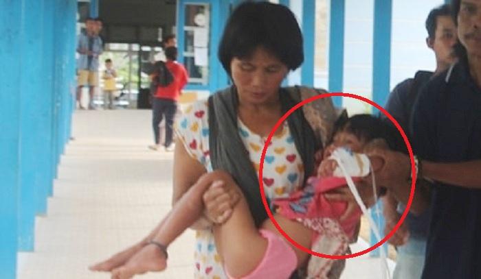 Bocah 5 Tahun Terjangkit Rabies Meninggal Dunia