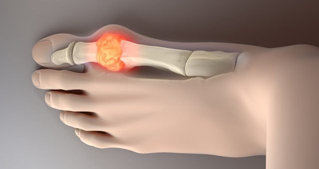 Tips On How To Lower Your Uric Acid And Reduce Joint Pain Naturally