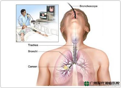 Beberapa Cara Diagnosis Kanker Paru-Paru