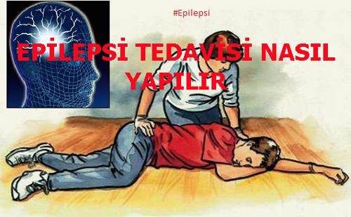 EPİLEPSİ TEDAVİSİ NASIL YAPILIR
