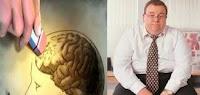 Obesos con mayor riesgo de padecer demencia y Alzheimer