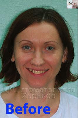 Лицо до лечения брекетами