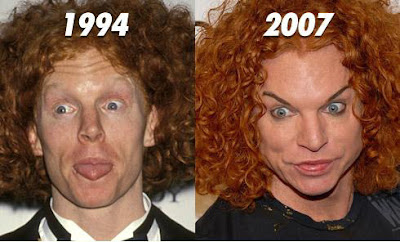Carrot Top Plastic Surgery Before And After Facelift And