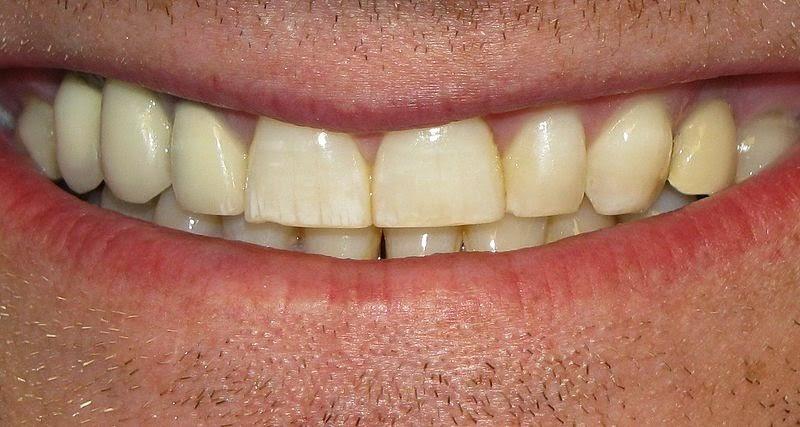 Tips Gigi Putih Dengan Pemutih Gigi Alami