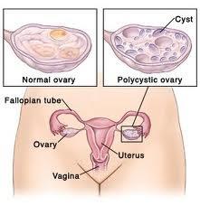 sindromul ovarului polichistic cum să piardă în greutate