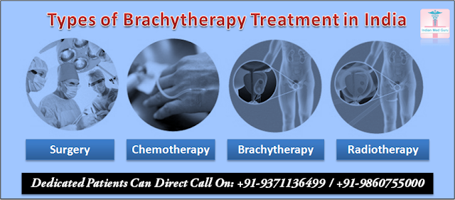 Types of Brachytherapy treatment in India