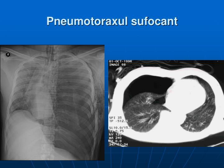 pierderea în greutate pneumotorax