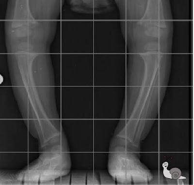Bebés y piernas torcidas