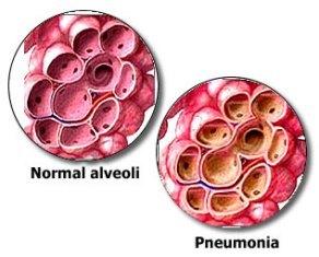 Obat Pneumonia pada Anak Bayi yang Aman dan Manjur