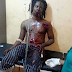 Lobatan! Traditional priest lands in hospital with gunshot wounds in order to prove his spiritual powers.