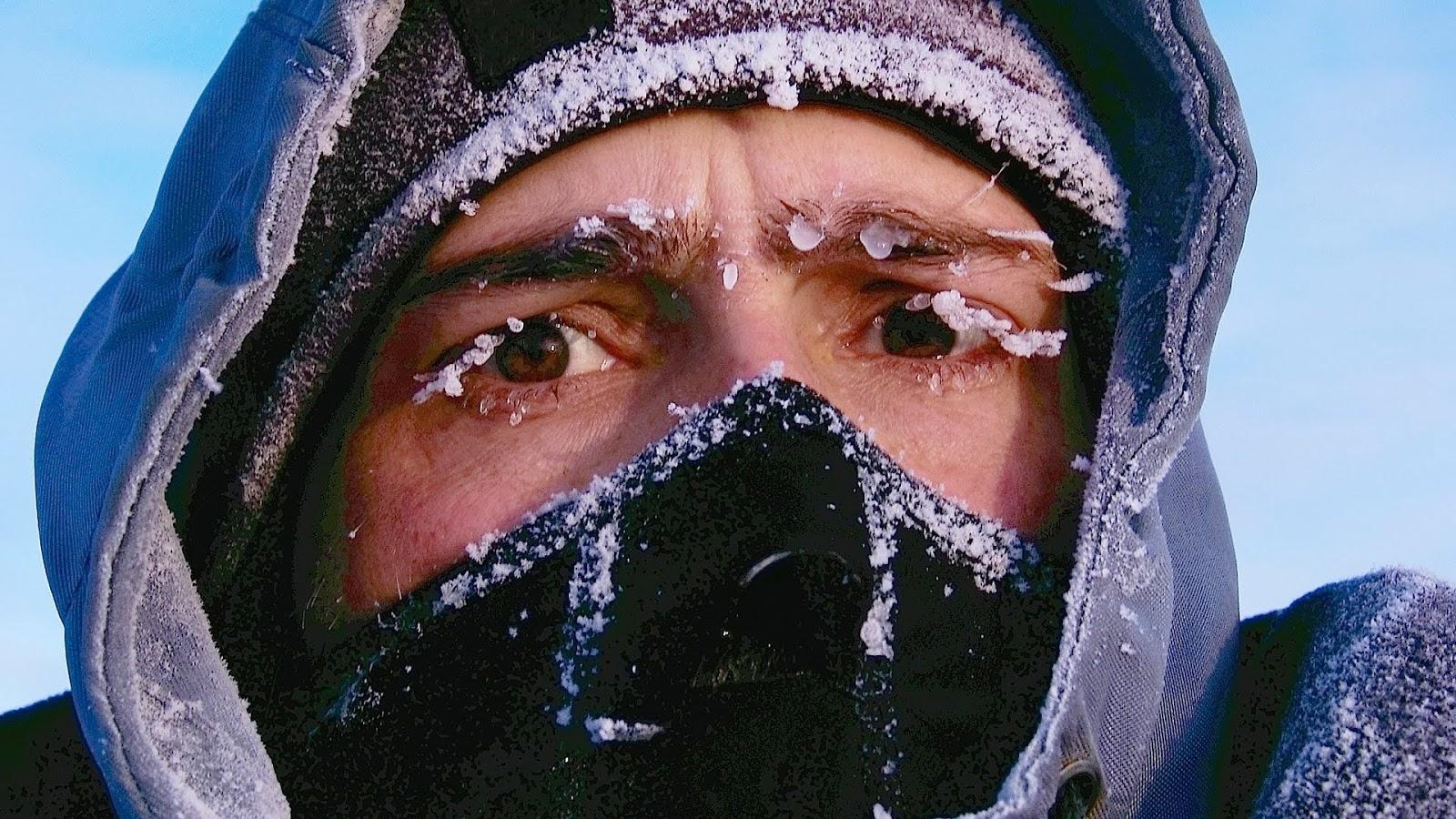 Pengertian Hipotermia dan Penyebabnya