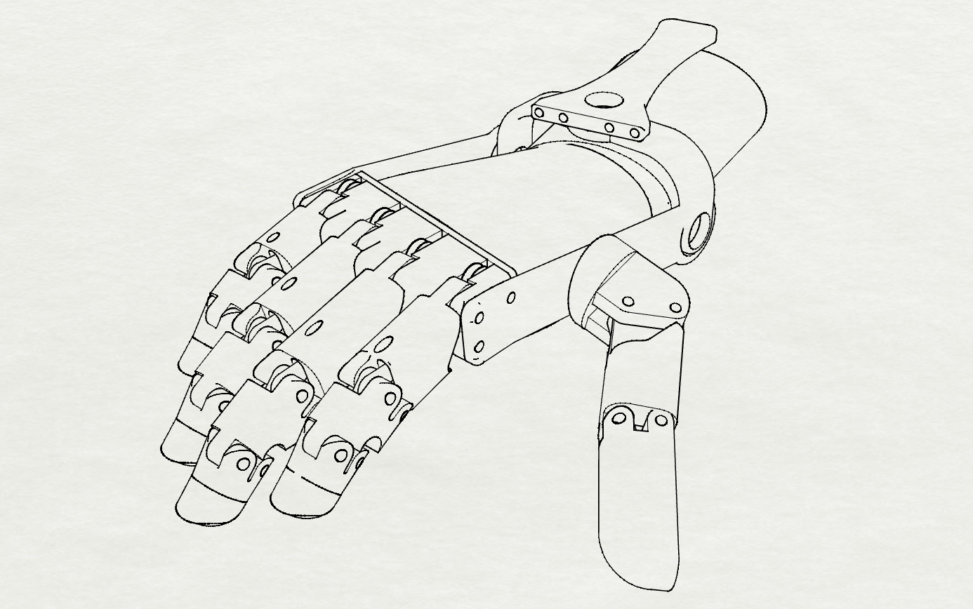 Handverker Prosthetic Hand Milwaukee Prt 3 Bob Roth