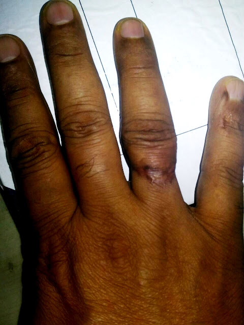 Severed finger of RPF serviceman reattached at NSSH through finger revascularization surgery