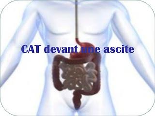 CAT devant une ascite.pdf
