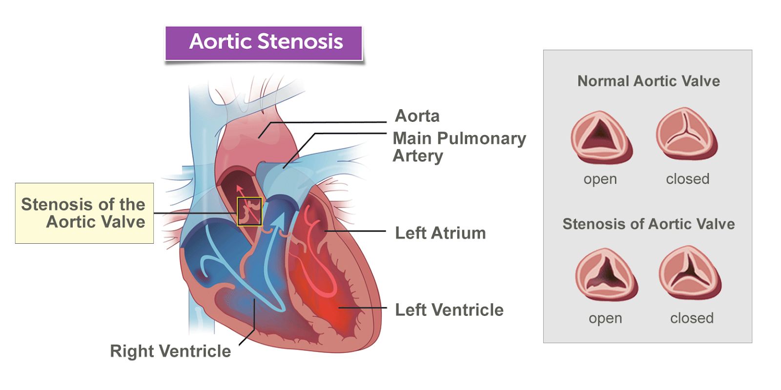 Physio study BD: Aortic Stenosis