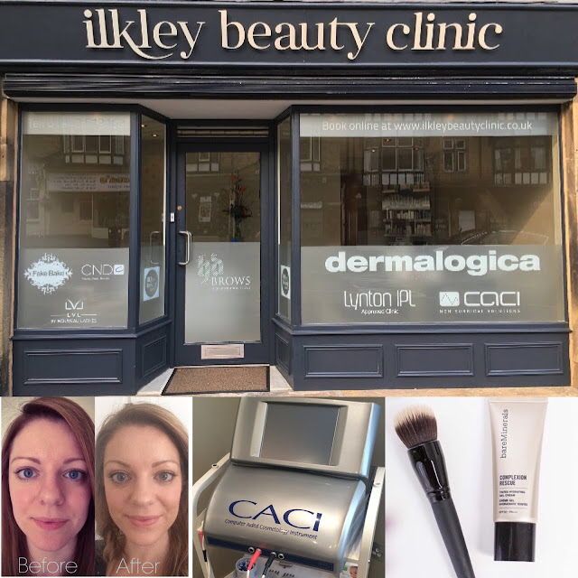ilkley beauty clinic, caci facial, bare minerals, complexion rescue, review