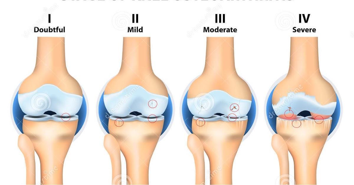 hialuronsav osteoarthritis kezelésére ár