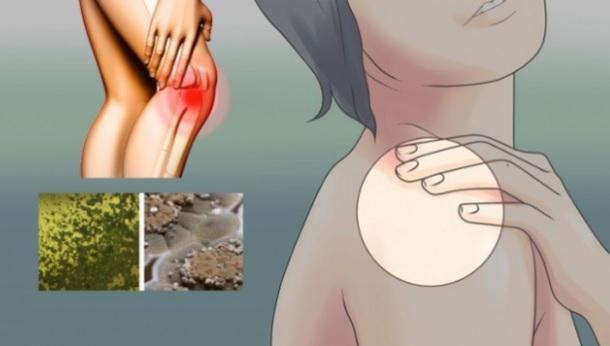 Simptomat e Helmimit nga Myku që s'duhen injoruar