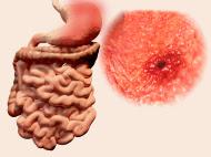 Gastritis-akut