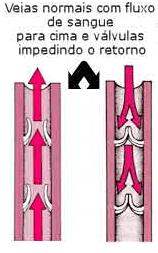 varizes veias válvulas normais