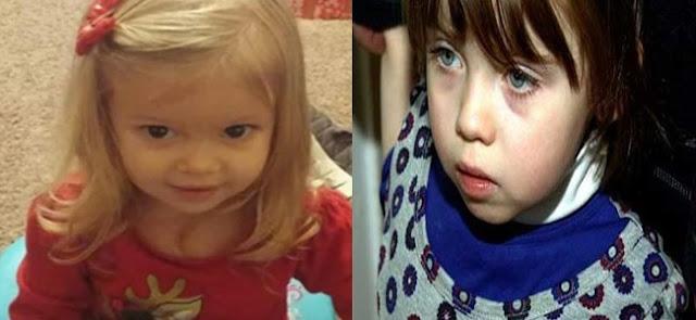 ماتت هذة الطفلة وعمرها سنتين بسبب شئ موجود في بيوتنا ولا ننتبه إليه ! إحذروا