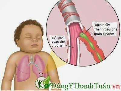 Hôi miệng xuất phát từ bệnh phổi
