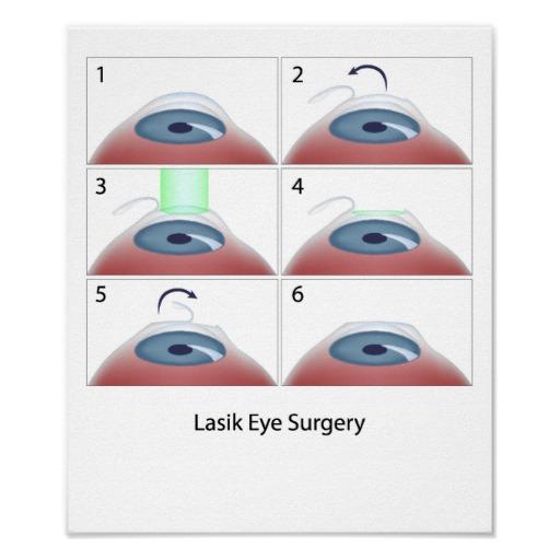 Parere medico Gli effetti a lungo termine della chirurgia dell'occhio di Lasik-1598
