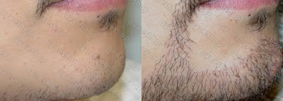 Hasil pemakian Kirkland minoxidil untuk menumbuhkan jenggot dalam 5 minggu