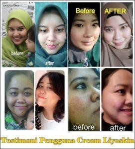 Skincare Yang Aman Digunakan Bahkan Oleh Ibu Hamil Dan Menyusui