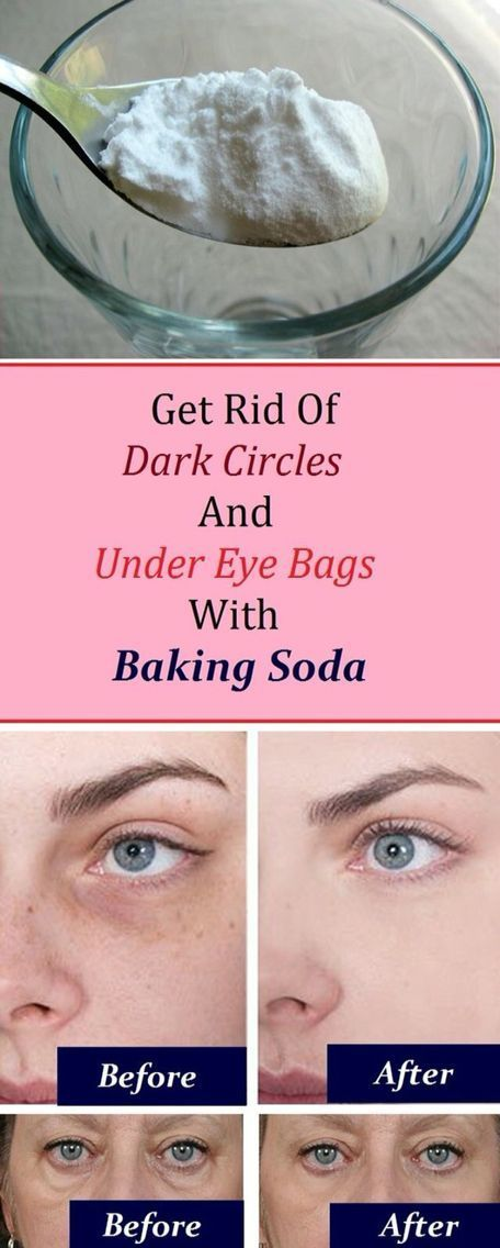 Get rid of under-eyes dark circles and bags using baking soda
