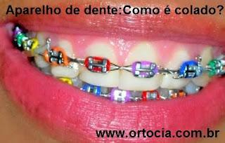 aparelhos nos dentes colorido