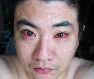 NGERI..Karena Melakukan Ini Setiap Malam, Mata Pria ini terkena Kanker Mata