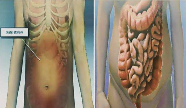 Feel Bloated? This is Why and What You Should Do to Relieve Constipation and Bloating in Few Minutes