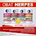 Obat Herpes Zoster Herbal de Nature | Alami Aman Ampuh