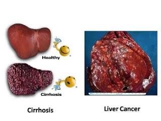 Obat Kanker Hati