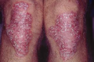 Obat Untuk Gatal Eksim Menahun di Lutut Kaki Yang Parah