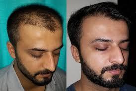 saç ekimi öncesi ve sonrası foto 7