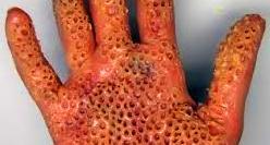 Penyakit kulit berlubang