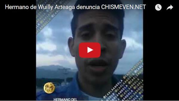 Wuilly Arteaga fue quemado en varias partes de su cuerpo