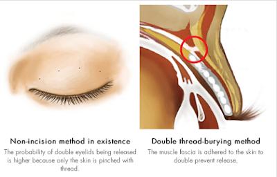 perbandingan operasi plastik mata Korea metode tanpa sayatan